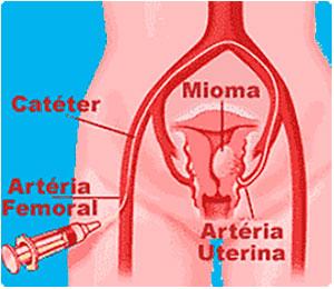 Como se processa a Cirurgia-de-embolização - Embolution - Passo 03