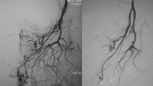Estudo angiografico da pelve - Embolution