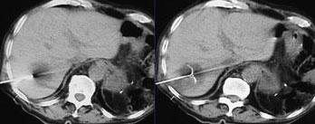 Exemplo Tomografia - Embolution