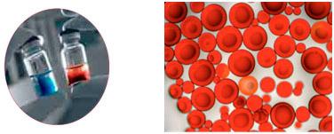 Quimioembolização - Embolution