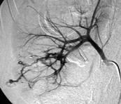 Hemorragia urologica provocada por um trauma-norim direito - 01 - Embolution