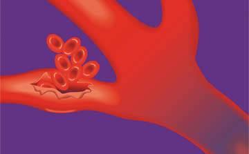 Hemorragias Sangramentos - Embolution