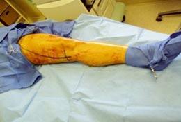Desenhar com caneta a veia na perna - Embolution