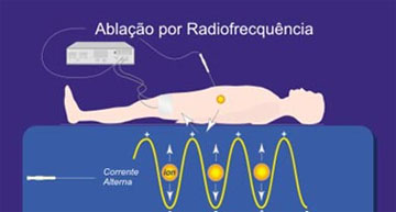 Funcionamento da Radiofrequencia - Embolution
