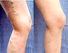 Antes e depois do tratamento com Laser Endovascular - Embolution