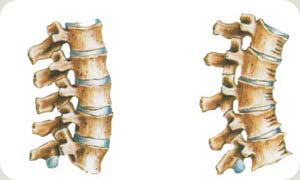 Coluna com vértebras normais - Embolution