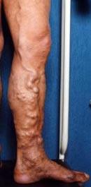 Foto de uma perna com varizes - Embolution