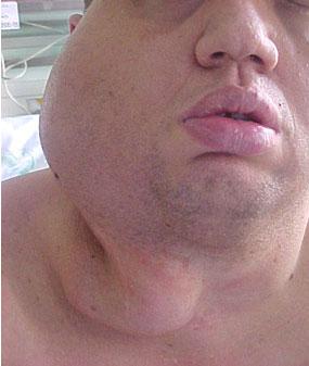 Grande malformação arterial localizada na região facial direita - Embolution