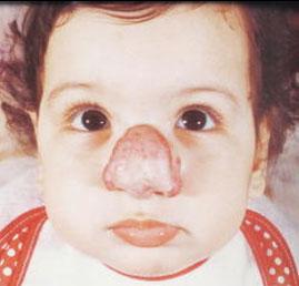 Hemangioma infantil em regiao nasal - Embolution