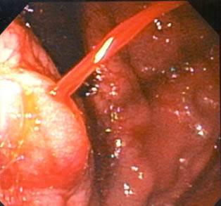 Imagem de um estudo por endoscopia - Embolution