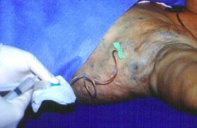 Técnica de esclerose percutânea - Embolution