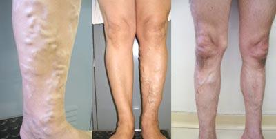 Varizes nas pernas - Embolution