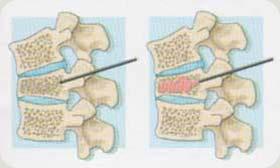 Vertebroplastia percutânea - Embolution